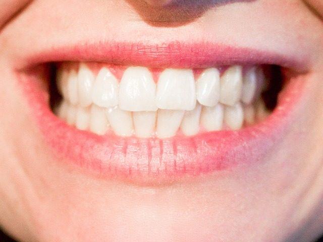 Bělící pásky nabízí efektivní bělení zubů